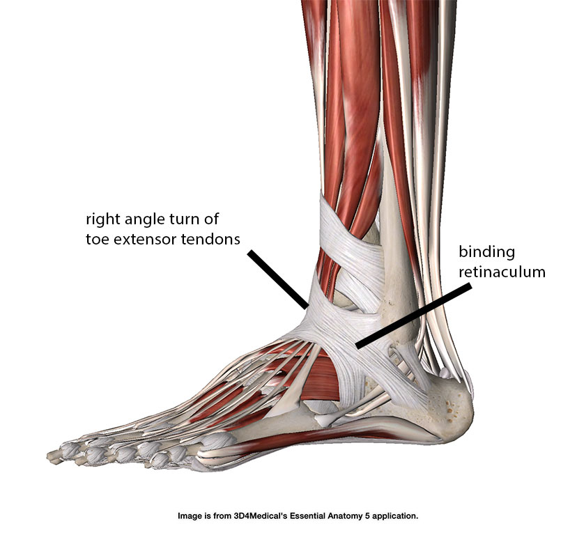 right angle turn of extensor tendons