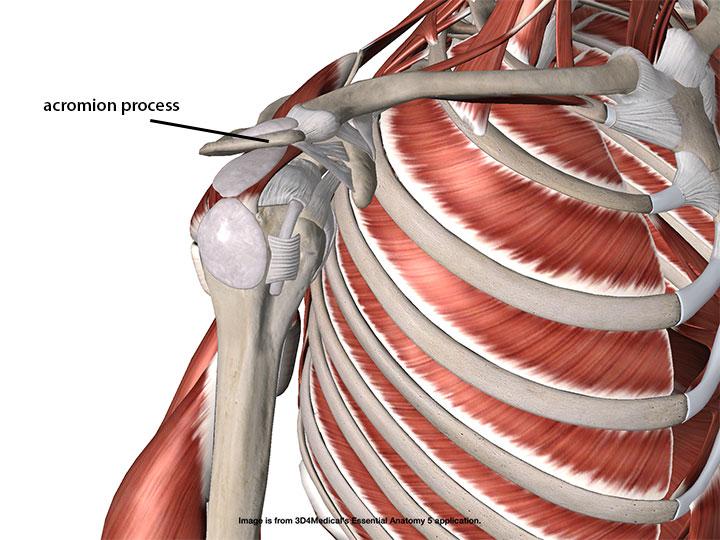 Understanding Acromioplasty - Academy of Clinical Massage