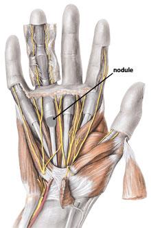 fibrous nodule adjacent to retinaclum in trigger finger