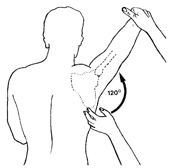 The Scapulohumeral Rhythm Academy Of Clinical Massage