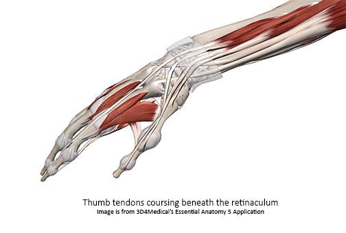 tenosynovitis-image
