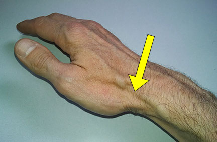 thumb-tendon-palpation