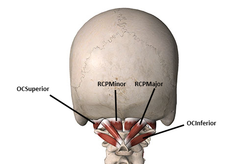 Safely Working the Suboccipital Muscles - Academy of ... Obliquus Capitis Inferior