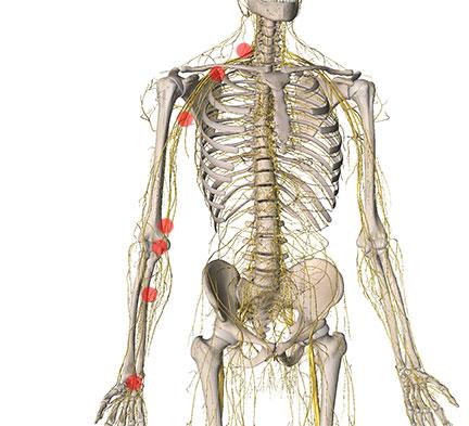 possible median nerve entrapment