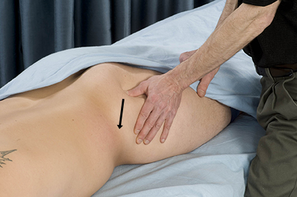 gluteal treatment