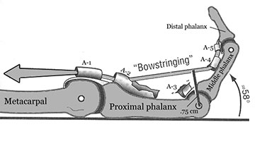 Flexor pulley injury