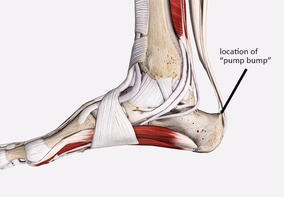"""Location of Haglund's deformity or """"pump bump"""""""