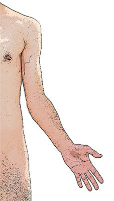 Cubital valgus angulation with a lateral deviation of the radius and ulna