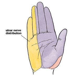Sensory distribution of the ulnar nerve