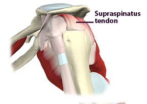 Figure 1 The supraspinatus tendon: a common location for calcific tendinitis.