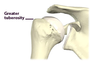 Figure 2: Greater tuberosity of humerus where pain is often felt