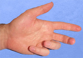 Figure 2 Fixed Flexion Deformity