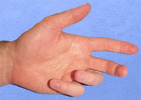 Figure 2 Fixed Flexion Deformity