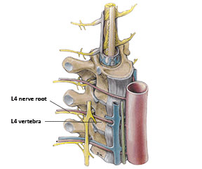 L4 Nerve Root Level