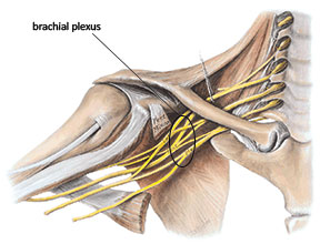 Collection of nerves in the brachial plexus