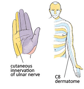 Cutaneous innervation and dermatome comparison