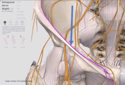ilioinguinal nerve