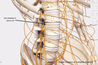 Disc pressure on the nerve root