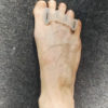 Figure 4 Toe spacers to improve metatarsal alignment Image courtesy of Whitney Lowe